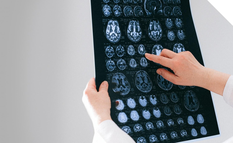 Магнітно-резонансна томографія (МРТ)